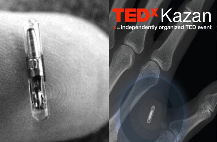 Who owns our data? Evgeny Chereshnev talks at TedX Kazan